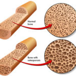 Osteoporosis Information